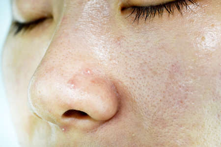 Skin problem with acne diseases, Close up woman face with whitehead pimples on nose, Scar and oily greasy face, Beauty concept. Stock Photo