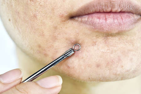 Skin problem with acne diseases, Close up woman face squeezing whitehead pimples on chin with acne removal tool, Scar and oily greasy face, Beauty concept.