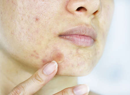 Facial skin problem, Close up woman face with whitehead pimples and acne patch, Scar and oily greasy face, Beauty concept.