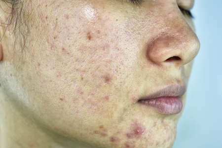 Skin problem with acne diseases, Close up woman face with whitehead pimples, Menstruation breakout, Scar and oily greasy face, Beauty concept.