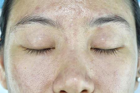 얼굴 피부 문제, 성인의 노화 문제, 주름, 여드름 흉터, 큰 숨구멍, 어두운 곳, 피부 탈수.