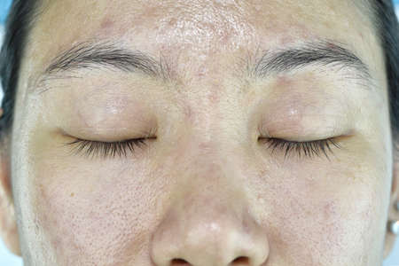 Facial skin problem, Aging problem in adult, wrinkle, acne scar, large pore, dark spot, dehydrate skin.