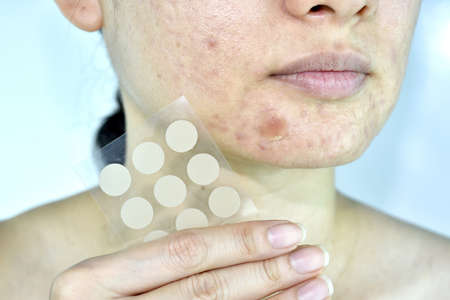 Facial skin problem with acne patch, Close up woman face with whitehead pimples and acne absorbing pad, Scar and oily greasy face, Beauty concept.