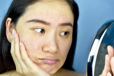 Aziatische vrouw die naar zichzelf in de spiegel kijkt, vrouwelijk gevoel dat zich ergert aan haar reflectieverschijning, toont de verouderende gezichtshuidtekens, rimpels, donkere vlek, puistje, acnelitteken, grote poriën, doffe huid.