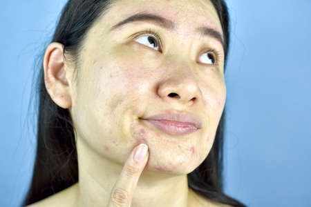 Asian woman finger point at whitehead acne on the chin, Adult worry about facial skin problem, Skin aging sign.