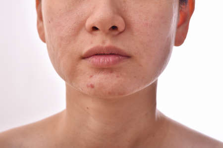 Skin problem with acne diseases, Close up woman face with whitehead pimples, Scar and oily greasy face, Beauty concept.