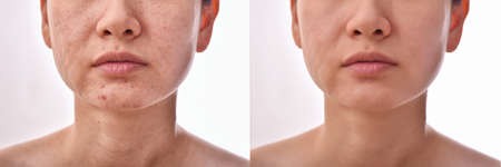 Skin problems and acne scar, Before and after acne facial care treatment, Beauty concept. Stock Photo