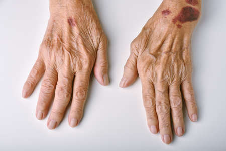 Old woman's deform hands, Skin hemorrhage bruise wound and senile purpura, Finger pain and stiffness from arthritis in senior people, Elderly healthcare concept.