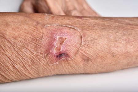 Accident wound on senior people wrist arm skin, Falls injury accident in elderly old man. Standard-Bild