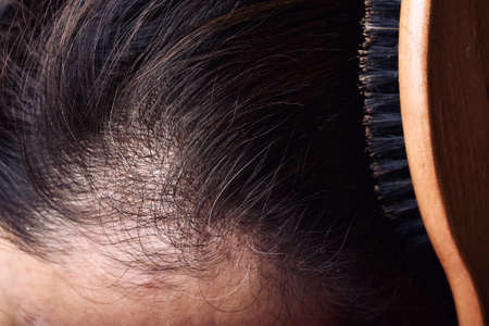 Hair and scalp health problems, Young asian woman with first grey hair, Middle-age woman aging problems. Stock Photo