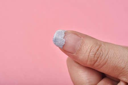 Cracked broken nail, Nail weakness damage from gel polish coating, Fingernail manicure hygiene.
