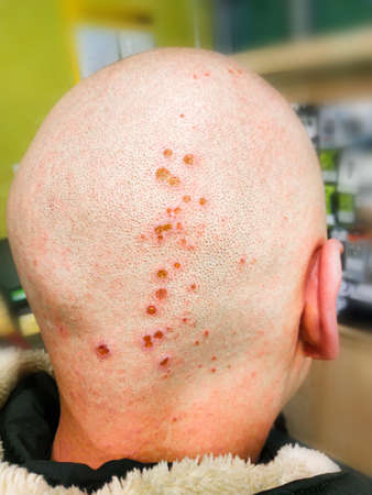 Chemical burns on the head. Wounds after hair dyeing. Chemistry. Disease of the skin on the head. Coronavirus