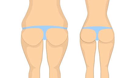 Antes y después de las nalgas. culo gordo con cellulit antes y sexy culo apretado delgado después. corrección cuerpo mediante ejercicios de fitness en el gimnasio o syrgery plástico. Ilustración de vector