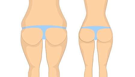 Before and after buttocks. Fat butt with cellulit before and sexy slim tight ass after. Body correction using fitness exercises at gym or plastic syrgery. Illustration
