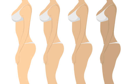 tanning: Stages of tanning. Isolated women on white background. Girls with different skin tones in white lingerie.