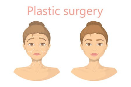 face surgery: Face plastic surgery. Illustration