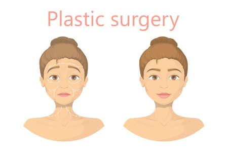Face plastic surgery. Illustration