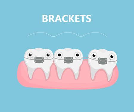 Teeth with brackets.
