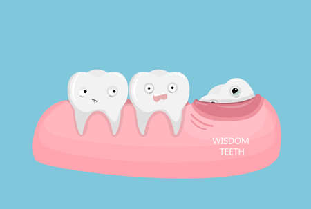 Wisdom teeth illustration.