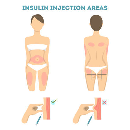 Lugares de inyecciones de insulina. Ilustración de vector