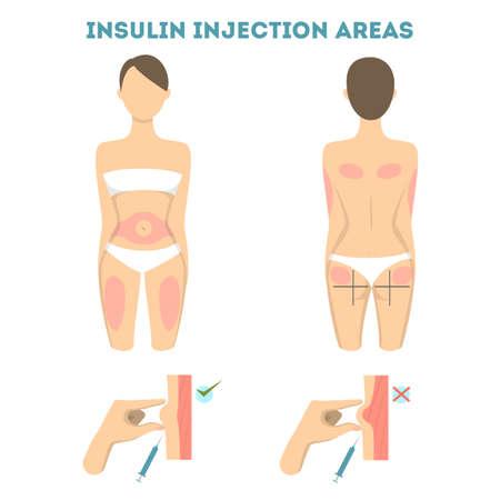 Miejsca wstrzyknięć insuliny. Ilustracje wektorowe