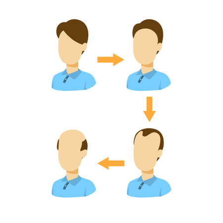 Stages of baldness.