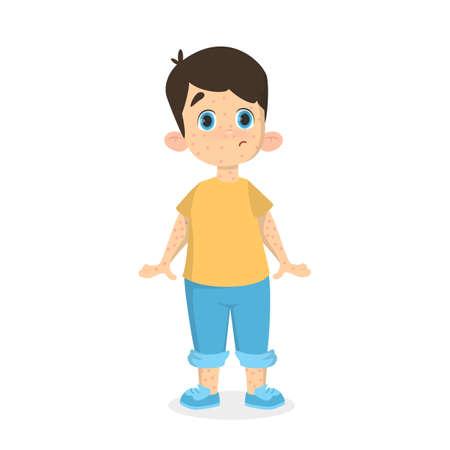 Boy with chickenpox.