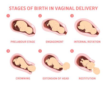 Etapas del nacimiento del bebé en el parto vaginal. Movimiento del feto durante el parto. Biología y ginecología. Ilustración de vector aislado