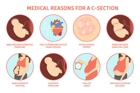 Medical reasons for cesarean delivery or c-section. Medical surgery and abdominal incision. Stalled labor and herpes, problem with placenta. Isolated vector illustration