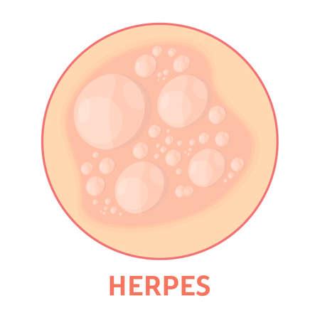 Herpes en la piel. Sanidad y dermatología