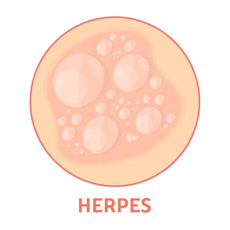 Herpes sulla pelle. Sanità e dermatologia