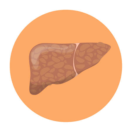 Fatty liver disease. Sick internal organ. Idea of healthcare and bad nutrition. Biology concept. Isolated flat vector illustration