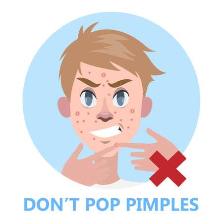 Man pop bouton sur le visage de l'acné. L'acné éclatante est interdite. Guy toucher son visage. Illustration vectorielle plane isolée Vecteurs