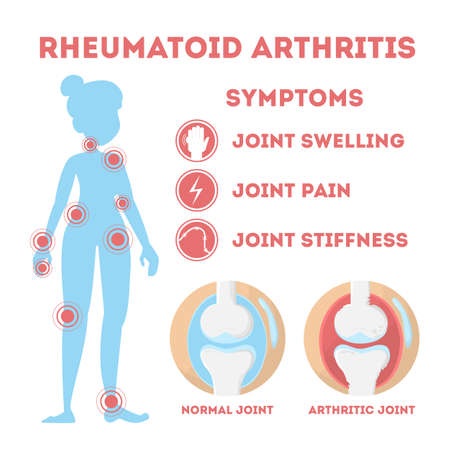 Rheumatism infographic. Bone disease on foot, hand and elbow. Body pain. Damaged joints. Symptoms. Isolated vector illustration in cartoon style