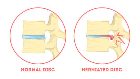 Disc degeneration. Human anatomy. Spine problem. Healthy joint and herniated disc. Arthritis or another spinal disease. Isolated vector illustration in cartoon style Stock Vector - 124948399