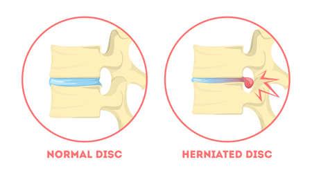 Zwyrodnienie dysku. Anatomia człowieka. Problem z kręgosłupem. Zdrowy staw i przepuklina dysku. Zapalenie stawów lub inna choroba kręgosłupa. Ilustracja wektorowa na białym tle w stylu kreskówki