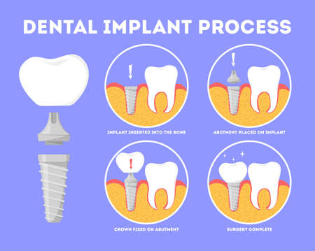 Dental implant process. Medical treatment and dentistry. Implant in the jaw and tooth crown. Artificial porcelain element. Vector illustration in cartoon style