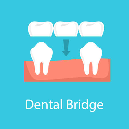 Dental bridge concept. Idea of tooth prosthesis installation. Dental treatment. Implantation procedure. Isolated vector illustration in cartoon style