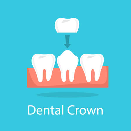 Tooth crown. Dentistry and implant procedure concept. Tooth restoration. Isolated vector illustration in cartoon style