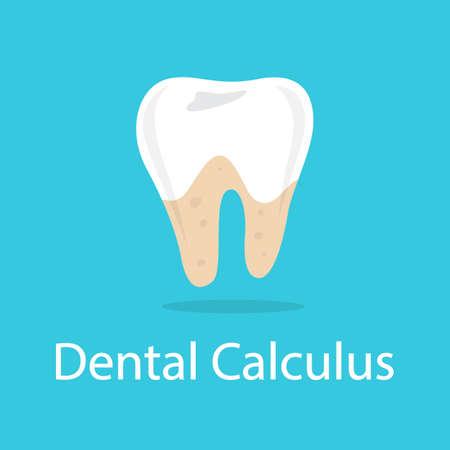 Dental calculus. Bad oral hygiene and damaged