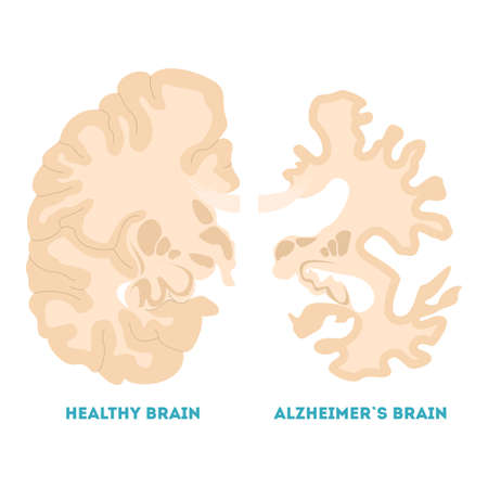 Healthy and alzheimer brain. Neurodegeneration concept illustration