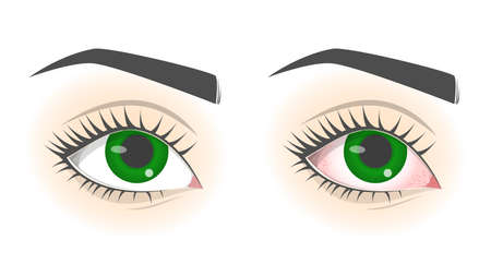 Conjunctivitis disease. Healthy eye and pink eye. Infection Illustration