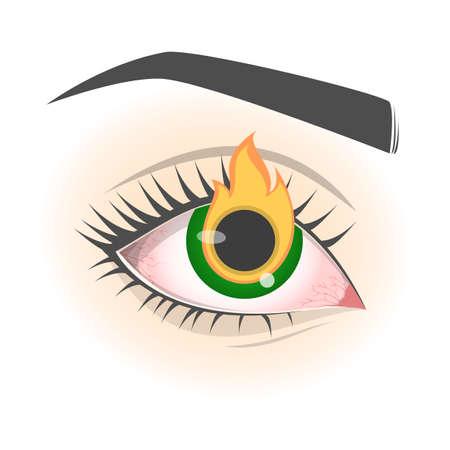 Burning eye feeling. Conjunctivitis disease, red eyeball. Vision