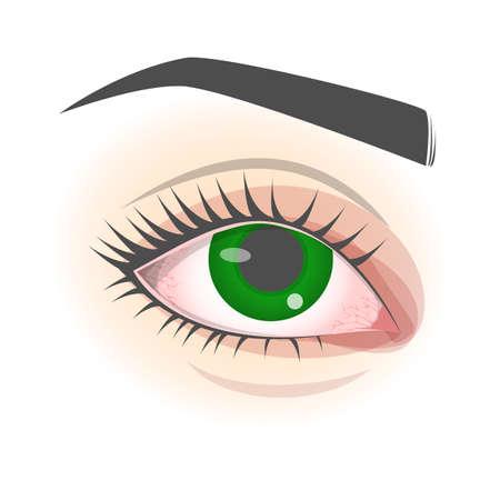 Swollen eye concept. Symptom of the eye disease, allergy