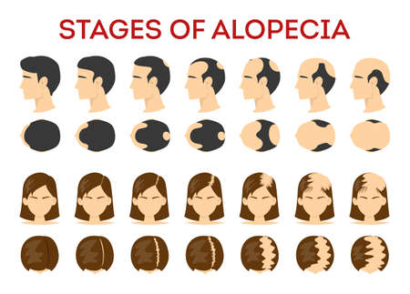 Alopecia stages set. Hair loss, balding process. Female and male alopecia. Isolated vector illustration in cartoon style Vettoriali