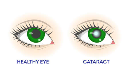 Healthy eye and cataract. Retina disease, problems with vision Иллюстрация