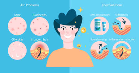 Young man bad skin problems ant treatment. Guy with pimples and wrinkles. Problematic skin, dermatology disease solution. Isolated vector illustration in cartoon style