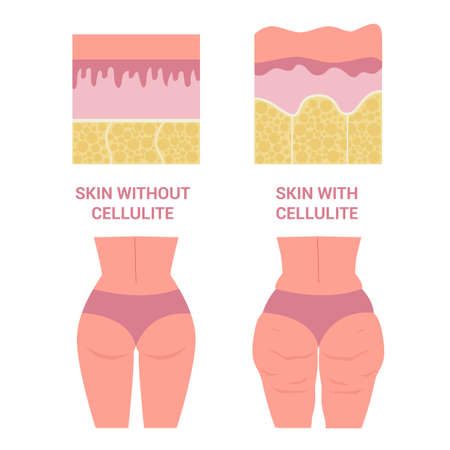 Young woman thighs with and without cellulite. Girl in underwear