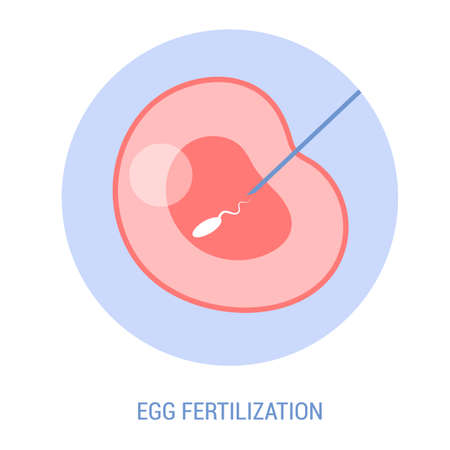 In vitro fertilization concept, artificial fertilization of woman egg in a laboratory. Female egg and male sperm. Microscopic view. Vector illustration