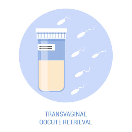 In vitro fertilisation step. Removing oocyte from the ovary